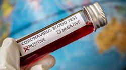 İtalya'da koronavirüsten ölenlerin sayısında korkunç yükseliş