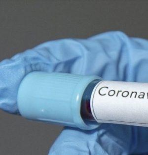 Rusya'dan açıklama geldi Koronavirüse karşı ilaç geliştirildi